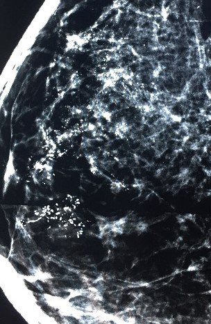 3D mammogram and biopsy in a foreign country