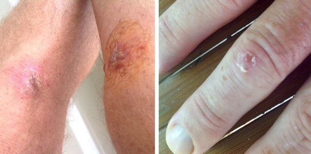 Tedly's wound worries include a calf cut and scraped knee, pictured on the left, and his banged up knuckle seen on the right.
